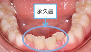 永久歯 ない 乳歯 生える 抜け